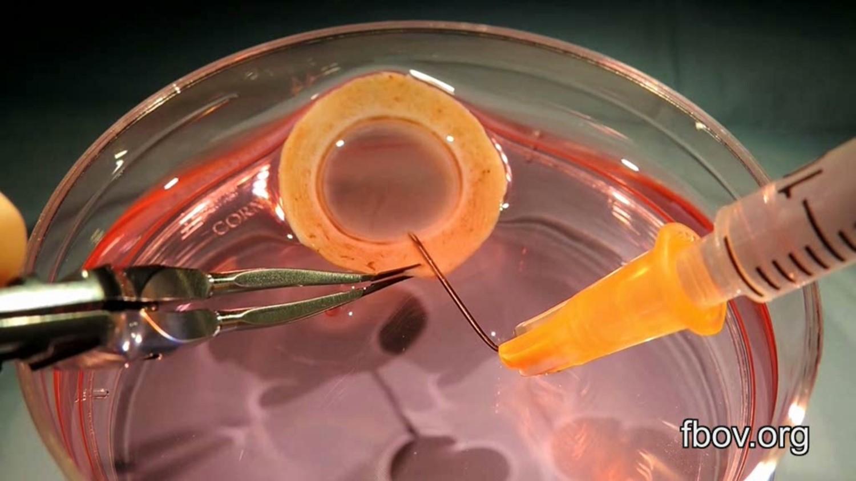 Cornea per endocheratoplastica
